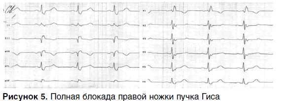 4e511e6d6b6d68d87ee66886798bbb42 - Slow intraventricular conduction what are these ECG indicators