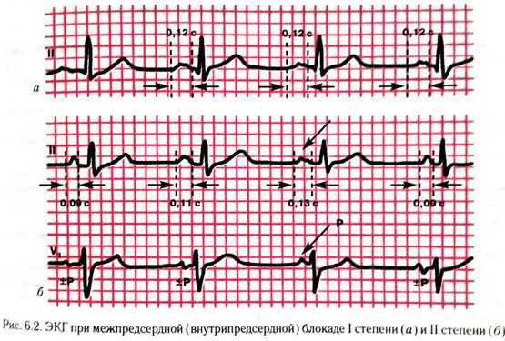 a1c6aa40557f8f2c67174873d67ddc01 - Slow intraventricular conduction what are these ECG indicators