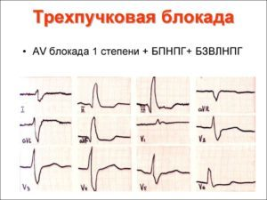 c342ac78176dbfa2e7ab9789175acb88 - Slow intraventricular conduction what are these ECG indicators